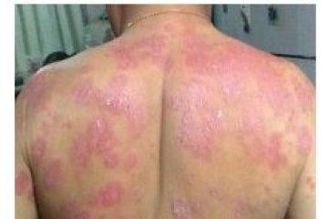 Kangen Water וספחת (Psoriasis)